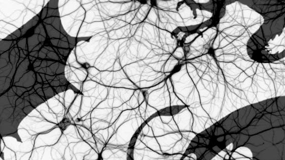 How to train your… Deep Neural Network